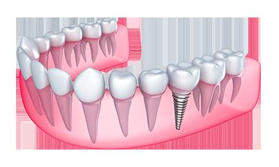 Oklahoma city dentist offering cosmetic dentistry paul k garetson dental implants solutioingenieria Image collections